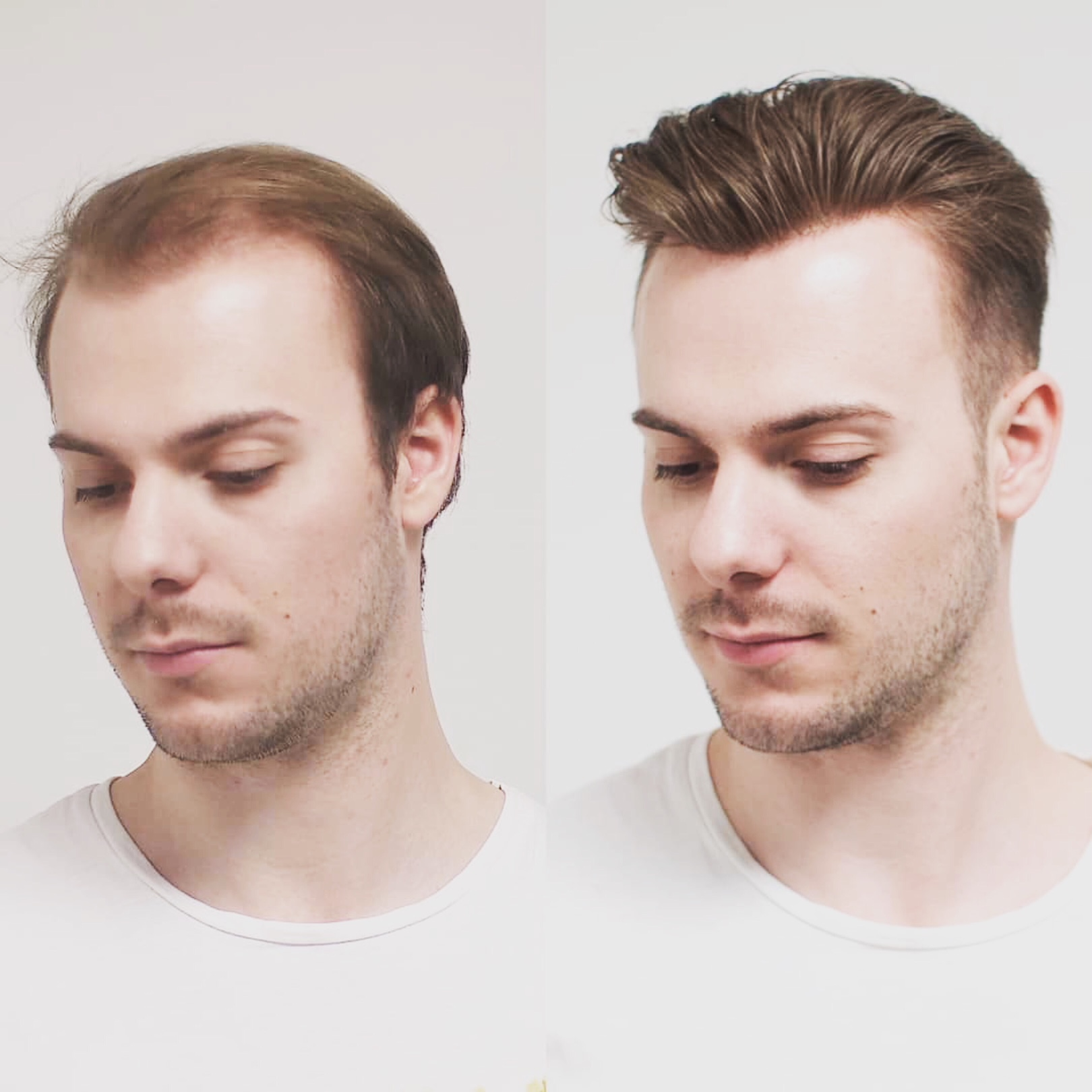 mens non surgical hair replacement