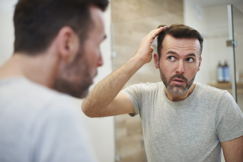 top causes of hair loss
